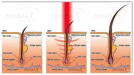 Laser Hair Removal India Laser Hair Transplant Treatment