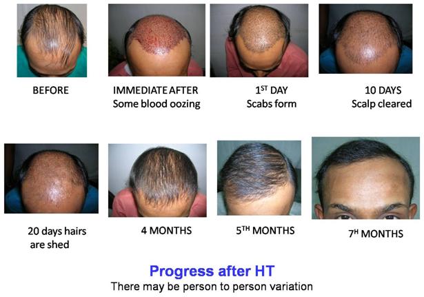 Dr. Bishan Mahadevia's - Hair Transplant Clinic India, Hair ...