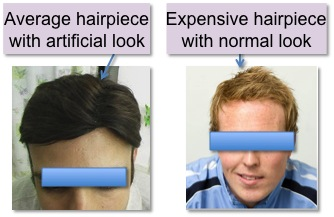 Dr bishan mahadevias hair transplant clinic india hair the first option for men who are experiencing hair loss is to do nothing some men choose to accept hair loss some men camouflage hair loss by changing pmusecretfo Gallery